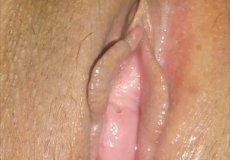 chochos depilados
