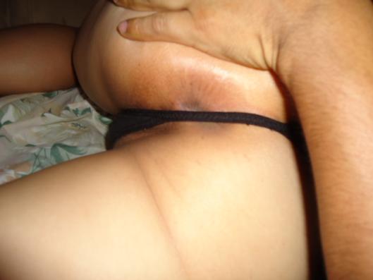 image El culito de bernice anal sex
